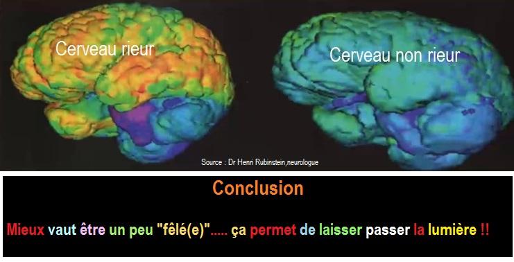 IRM cerveau G illuminé par le rire - H. Rubinstein 2