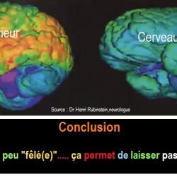 L' IRM du cerveau lors du rire